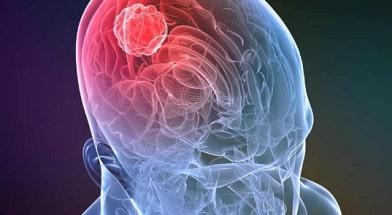 Безопасный метод удаления опухоли головного мозга