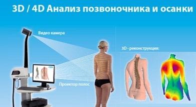 Лечение в Германии суставов и позвоночника, 4D диагностика