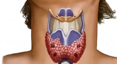 Эутирокс- лечение заболеваний щитовидной железы