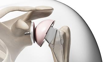 Протезирование суставов в Германии. Операции по замене коленного сустава в Германии