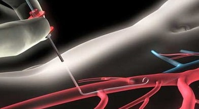 Чрескожная транслюминальная коронарная ангиопластика (ЧТКА)