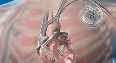 Кардиовертеры и дефибрилляторы