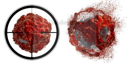 ПСМА-радиотерапия - лечение рака простаты с метастазами