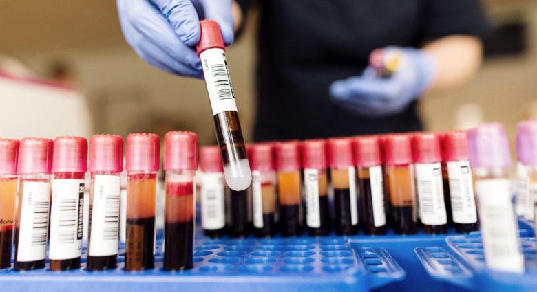 Немелкоклеточный рак легкого: клиническое применение жидкой биопсии