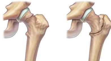 Переломы шейки бедра: как лечить?