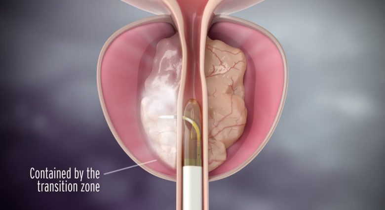 Лечение методом REZUM - новый метод лечения аденомы простаты